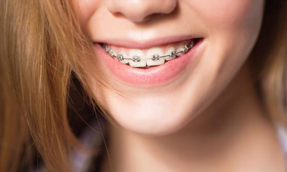 Czyszczenie zębów z aparatem ortodontycznym